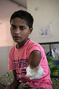 Rohingya refugee crisis. Mohammed Faisal, (13), had his arm shot off by Myanmar military during an attack on his village. Separated from his parents, with the help of his Uncle, escaped with his brother and sister. Trekking for one month and ten days, with his wound wrapped in leaves, he finally crossed into Bangladesh where he is receiving much needed medical attention at Sadar Hospital in Cox's Bazar, Bangladesh - Photograph by David Dare Parker