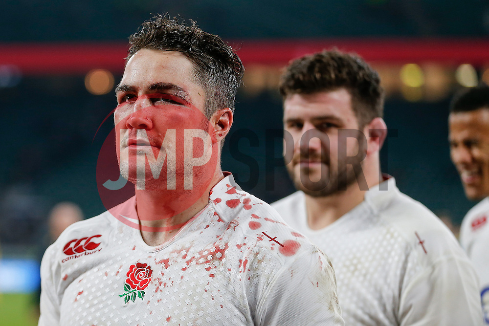 England Outside Centre Brad Barritt leaves the pitch with a badly cut eye, from contact with Australia replacement Quade Cooper, after England beat Australia 26-17 - Photo mandatory by-line: Rogan Thomson/JMP - 07966 386802 - 29/11/2014 - SPORT - RUGBY UNION - London, England - Twickenham Stadium - England v Australia - QBE Autumn Internationals.