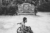 A young boy suffering from the effects of dioxin poisoning during the Vietnam-American War sits in a wheelchair in his small village in Quang Tri, Vietnam.