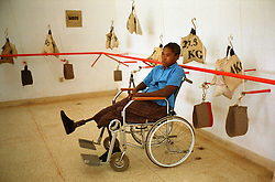 An Angolan who lost her leg to a land mine waits to get fitted for a prosethetic leg at the International Red Cross hospital in Huambo, Angola. Hundreds of thousands of Angolans  have lost limbs after stepping on a mine and in some towns one-in-four people have lost a limb or have been killed by mines. Despite a huge campaign to educate Angolans of the danger, most are forced to search the countryside for food despite the risk. .(Photo by Ami Vitale)