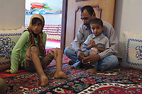 Iran. Minab. April 2008. Leprosy is an infectious disease that can cause nerve damage, muscle weakness, and skin lesions. An Iranian leprosy NGO founded 7 years ago is actively helping people who are infected with leprosy and live in poverty.. .