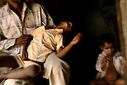 Doli, 5, (middle) from the village of Barnawa, pop.6000, Baghpat District, Uttar Pradesh, India, located along the banks of the severely polluted Hindon river, is shaking in the arms of her father, on Wednesday, Apr. 2, 2008. Doli is affected by a neurological disorder since birth. Doctors believe her condition to be associated to water contaminated with alarming levels of pesticides and heavy metals the family is drinking on an everyday basis. Her skull is underdeveloped and she has serious cognitive limitations that have left her unable to frequent school or carry on any sort of educational activity. The family is now using a nearby governmental hand-pump that provides better quality water in comparison to the 20ft deep private one they priory used.