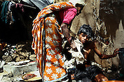Sachin, 16, a boy suffering from a severe physical disorder affecting his bone structure and legs, is being helped washing by his grandmother, inside their home in the impoverished Oriya Basti colony, Bhopal, Madhya Pradesh, India, near the abandoned Union Carbide (now DOW Chemical) industrial complex. Copyright: Alex Masi