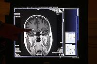 .Paris, France...brain scan..MRI (IRM) Magnetic Renonance scanner..Hospital St. Louis, a Public Assistance hospital in Paris. - Photograph by Owen Franken