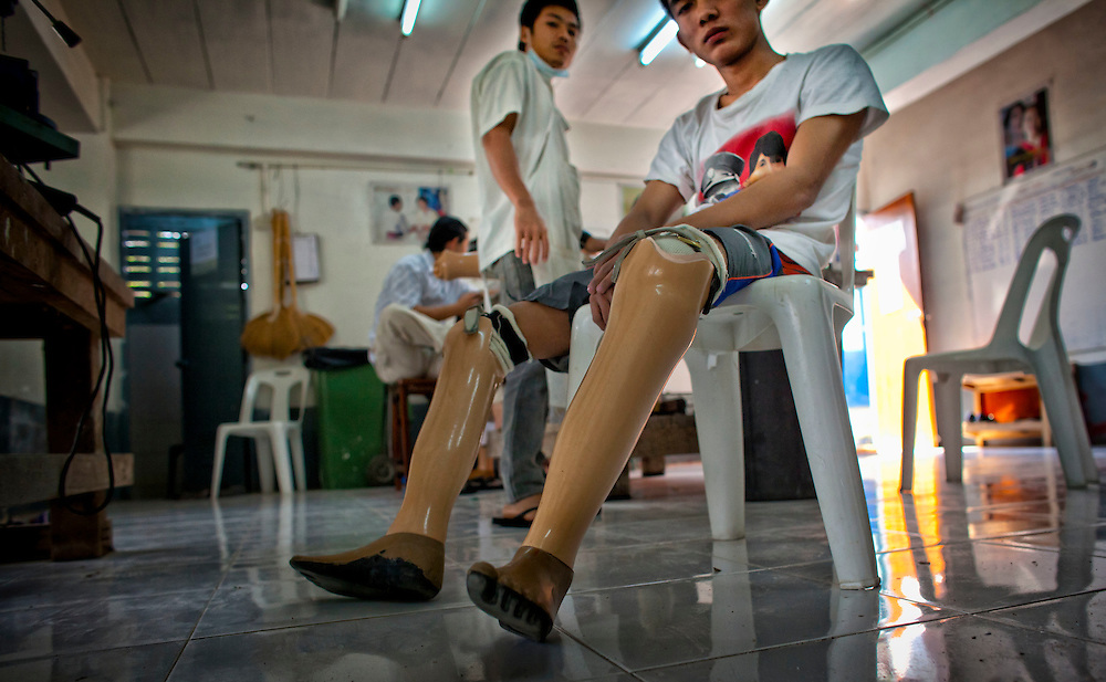 That Nge Lay, a former student who lost both legs to a landmine looks on as his new prosthetic limbs are crafted at the Mae Tao clinic in Mae Sot, Thailand, Tuesday, Feb. 21, 2012.