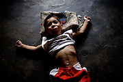 Shazan, 2, a child suffering from a severe mental and physical disability, and born from gas-affected parents, is laying on the floor of his home, while his mother is busy working in the house, in the impoverished New Arif Nagar Colony, Bhopal, Madhya Pradesh, near the abandoned Union Carbide (now DOW Chemical) industrial complex.