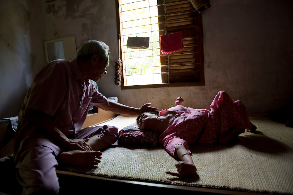 Pham Minh Trieu with his daughter, Pham Thi Ngoc Minh 33 yrs old..He was in the Army from 1950 - 1975 and was an Army medic during the War. He remembers hiding in underground tunnels during US Air Force bombing raids. He was based in Baria, Vung Tau, when dioxin was dropped on the area. He has strong memories of leaves falling off plants and trees dying. He also remembers eating fruit from dioxin-affected regrowth. Returning to Ben Tre Provence, he met and married his wife. He blames the defects of his daughter, Pham Thi Ngoc Minh , on dioxin poising, a direct result of his exposure to the poison during the War.