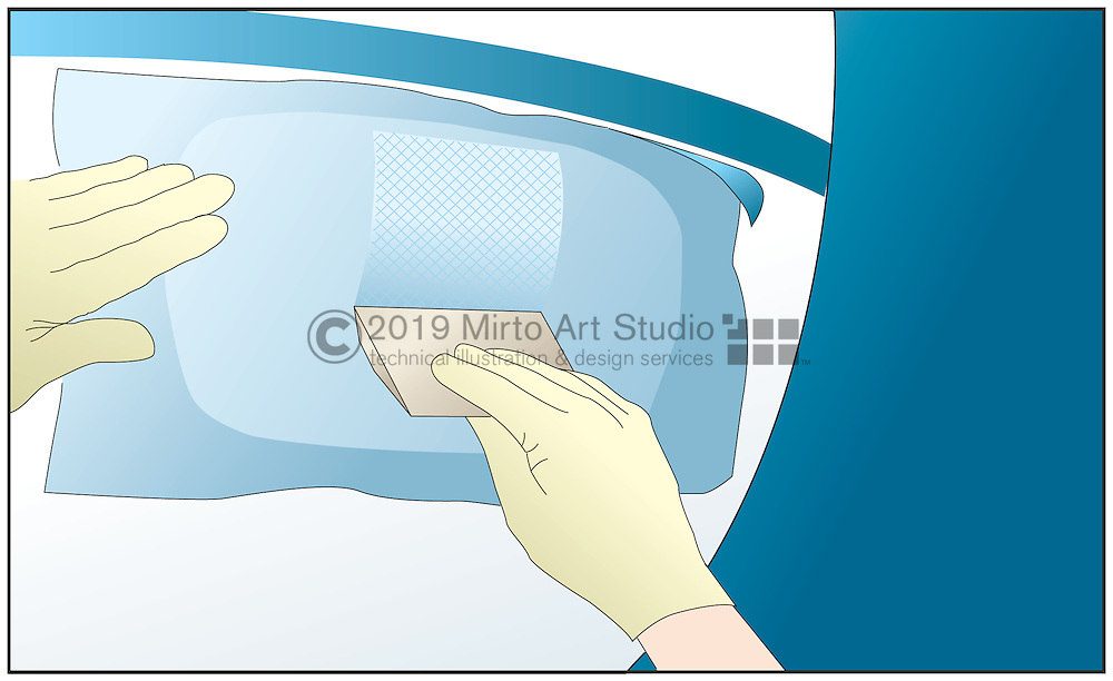 A vector illustration showing how to repair a fiberglass hull