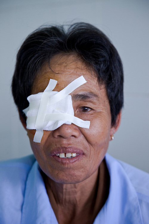 Chu Nguyen 61 has a cataract operation at Binh Dinh Eye Hospital. She is from Cat Hai Community in Chanhoai Village in Phu Cat District Binh Dinh Province.
