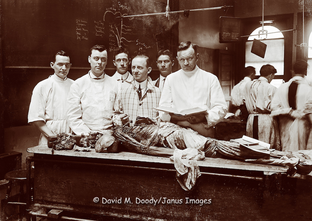 Group of men with a dead body in a medical school anatomy class, vintage photo circa 1915.