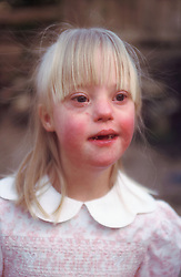 Portrait of young girl with Downs syndrome,