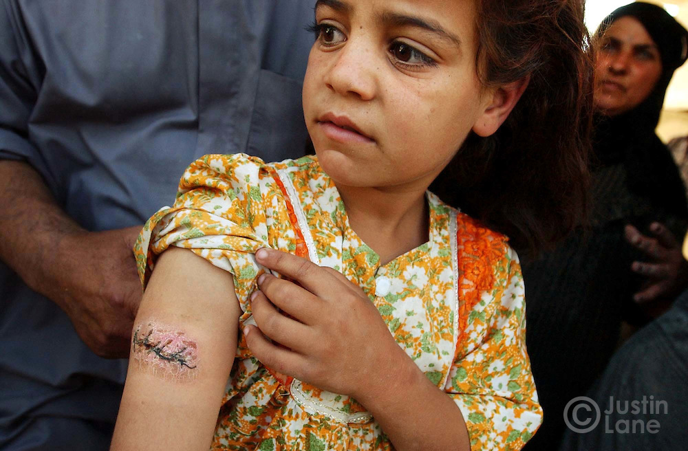 09/21/03--Faluja, Iraq--6-year-old Sarab Hamid is seen standing amongst her family showing the bullet wound she recived when a convoy of American soldiers opened fire on her family's home for yet-to-be-determined reasons. The incident killed a 2-year-old girl and injured 4 others.