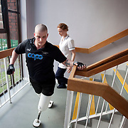Pte Stephen Bainbridge of the Black Watch ( 3SCOTS) who lost both legs in an IED explosion on the 11th of November 2011 in Loya Manda, Helmand Province , Afghanistan is now recovering well in Headley Court RAF Hospital. His physiothreapist, Claire Painter descibes him as a very determind man. He is making rapid progress on his mission to walk again. Headley Court, England on the 20th of March 2012.