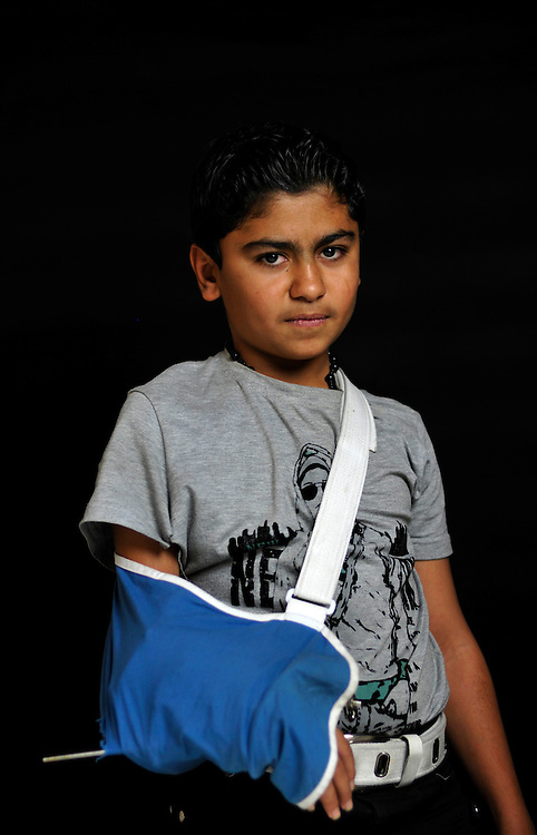 Hamid Mohammed, 15 years old, from Anbar, was hit by a bullet that shattered bones in his arm while walking to school one morning. .Amman, Jordan. 01/12/2011..Photo © J.B. Russell