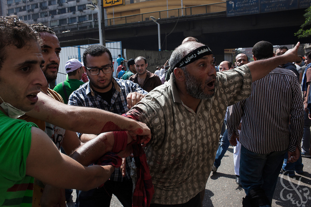 "A protestor wounded by live gunfire is assisted to a nearby mosque field hospital by fellow supporters of deposed Egyptian President Mohamed Morsi during intense street clashes near Ramsis Square during the August 16, 2014 ""Day of Rage"" protests in Cairo, Egypt."
