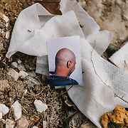 View of Sarmads skull, showing the scars from the explosion. Sarmad, 18 from Damascus countryside, his home was hit by a bomb, he has fourteen scars on his skull from the explosion. He had travelled for a month and a half before reaching Idomeni, His dream is to become a doctor and help people. THe revolution has broken his dreams, He has suffered psychological trauma due to explosion.