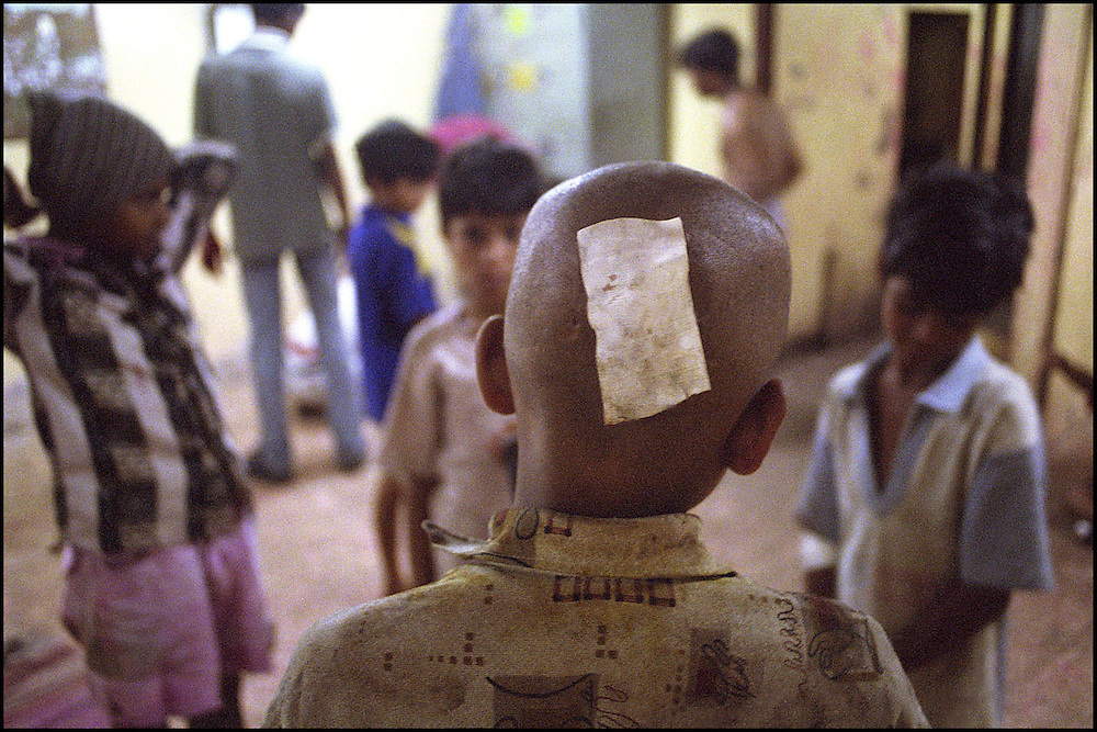 "INDIA. Mumbai (Bombay). 2002. Due to a violent ""play-fight"" with an elder youth; a wound is protected by plaster on the back of homeless boy's head."