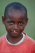 112,  Keni Fidele, male, nine years old, BCL, before.  Tamatave Hospital. Operations Smile's 2014 mission to Tamatave Madagascar. 10th - 20th September 2014<br /> <br /> (Operation Smile Photo - Zute Lightfoot)