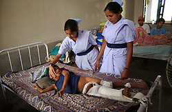 KATHMANDU, NEPAL, APRIL 14, 2004: Nepali nurses look after Sunil Sharma, 9 years old, in a hospital in Nepalganj, Nepal who was injured in an explosion 10 days earlier by Maoist insurgents fighting government forces April 14, 2004.  Over two thousand children have been killed in the fighting which began in 1996.  (Ami Vitale/Getty Images)