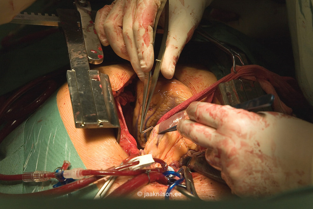 Heart Surgery, CABG, Aorto-Coronary Bypass