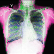Chest X-ray of a 15 year old female patient with cystic fibrosis (CF)