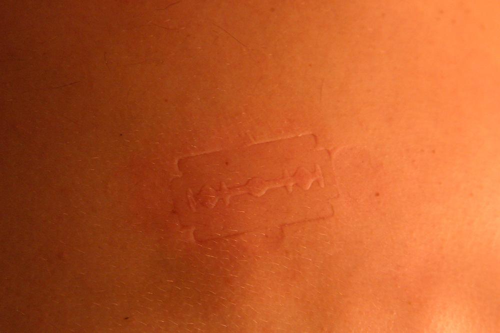 Belo Horizonte_MG, Brasil..Detalhe de uma pele humana...The human skin detail...Foto: LEO DRUMOND / NITRO