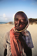 A man with a head injury from shrapnel. The injury was too complicated for surgery. He was left to die in Mogadishu, the war-torn capital of Somalia. March 1992.