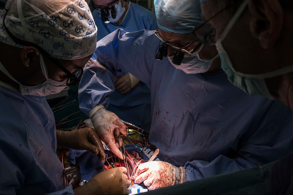 Surgeons work on replacing the aortic valve of Annet Kobutungi, 28, at King Faisal Hospital in Rwanda.<br /> <br /> Rheumatic heart disease is damage to one or more heart valves that stems from inadequately treated strep throat. Left untreated, rheumatic heart disease leads to heart failure.