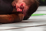 Blood drips from a cut on Daniel Hooker in a fight against Yair Rodriguez during UFC 192 at the Toyota Center on October 3, 2015 in Houston, Texas.