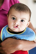 HND_2016_Tegucigalpa_037_Carlos Campos_<br /> Carlos Manuel Campos #037, 6 months, UCL, before during prescreening at the Operation Smile Cleft Lip and Cleft Palate Integral Care Clinic  in Tegucigalpa, Honduras  February 17, 2016. (Operation Smile Photo - Rohanna Mertens)