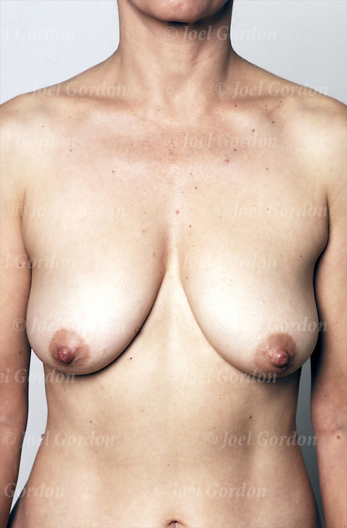 Nude young woman's breast size and shape. Female sexual anatomy