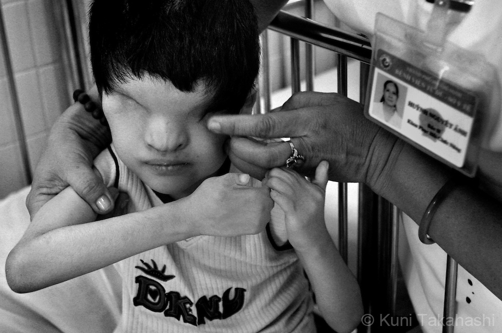 Tran Huynh Thuong Sinh, who was born without eyes, is checked by a nurse on July 8, 2009, at Tu Du Hospital in Ho Chi Minh City, Vietnam. Many children in the hospital, who are from areas that were heavily sprayed by Agent Orange during the war, suffer mental and physical problems due to exposure to the toxic herbicide.