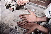 "Hands injured by the hard cunsume of heroin. Rawalpindi, Pakistan, on friday, August 29 2008.....""Pakistan is one of the countries hardest hits by the narcotics abuse into the world, during the last years it is facing a dramatic crisis as it regards the heroin consumption. The Unodc (United Nations Office on Drugs and Crime) has reported a conspicuous decline in heroin production in Southeast Asia, while damage to a big expansion in Southwest Asia. Pakistan falls under the Golden Crescent, which is one of the two major illicit opium producing centres in Asia, situated in the mountain area at the borderline between Iran, Afghanistan and Pakistan itself. .During the last 20 years drug trafficking is flourishing in the Country. It is the key transit point for Afghan drugs, including heroin, opium, morphine, and hashish, bound for Western countries, the Arab states of the Persian Gulf and Africa..Hashish and heroin seem to be the preferred drugs prevalence among males in the age bracket of 15-45 years, women comprise only 3%. More then 5% of whole country's population (constituted by around 170 milion individuals),  are regular heroin users, this abuse is conspicuous as more of an urban phenomenon. The substance is usually smoked or the smoke is inhaled, while small number of injection cases have begun to emerge in some few areas..Statistics say, drug addicts have six years of education. Heroin has been identified as the drug predominantly responsible for creating unrest in the society."""
