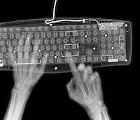 X-ray image of hands and keyboard (white on black) by Jim Wehtje, specialist in x-ray art and design images.