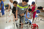 Vietnamese amputees are custom-fitted with prosthetics in one day at the Mercer Prosthetics clinic in Ben Tre City. The patients have their legs amputaed for various reasons, from bone tumors to accidents and land mines.