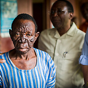 """Lion Face"" is one of the many effects of Leprosy. This is the stage when the disease starts eating away at a person's face, morphing their features until they look like a lion."