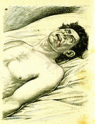 Epilepsy, a subject suffering from a typical Grand Mal attack in which he has bitten his tongue.  In ancient times it was known as the Sacred Disease .  Julius Caesar suffered epileptic seizures. From Jules Rengade 'Les Grands Maux et les Grands Remedes',