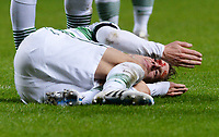 21/01/15 SCOTTISH PREMIERSHIP<br /> CELTIC v MOTHERWELL<br /> CELTIC PARK - GLASGOW<br /> Blood pours from the head of Celtic's Stefan Johansen after a clash of heads