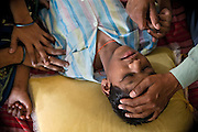 A boy suffering from a severe neurological disorder is being treated with speech therapy inside Chingari Trust, the local NGO caring for disabled children in Bhopal, Madhya Pradesh, India, near the abandoned Union Carbide (now DOW Chemical) industrial complex.