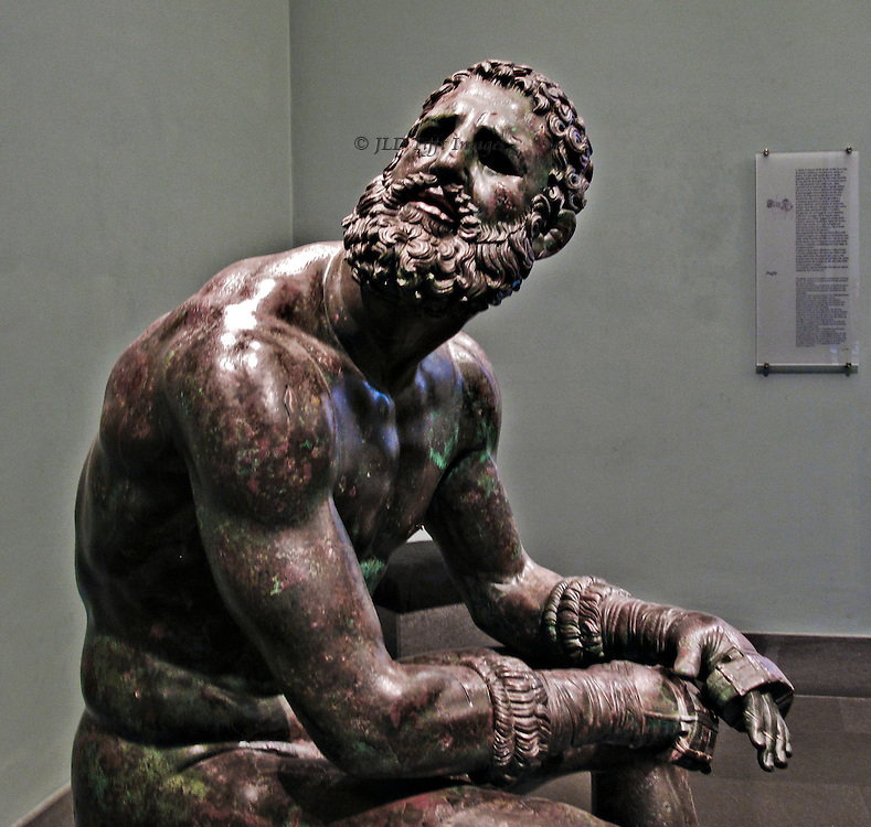 Museo Nazionale de Roma, Palazzo Massimo, statue of a seated boxer, bronze.  Partial view, from the hips up, the head turned toward the camera.  The hands are tightly wrapped; facial expression one of polite weariness as he turns his head to answer someone.