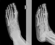 x-ray of a foot showing a fracture in the intermediate phalanx of the small toe on the left foot of a 30 year old male patient