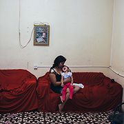 Jusikelly and her child Luhandra, in their home in Recife's suburb. Luhandra needs a surgery to insert a probe that send down the food directly into the stomach.