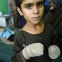 A young boy looks on after receiving medical treatment at the main hospital in Kandahar. According to the United Nations, 20 percent of children in Afghanistan die before their first birthday, mostly from preventable diseases. August 2002.<br />