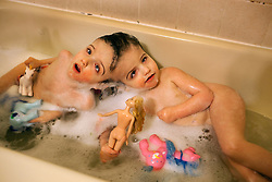 Four-year-old craniopagus twins Tatiana and Krista Hogan take a bath in their home in Vernon, British Columbia, Canada, Feb. 26, 2011. The twins, born Oct. 25, 2006 to parents Felicia Simms and Brendan Hogan, are connected at the head and share a brain. Neurologists say the twins are the only such set that have a common neurological connection.