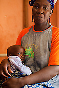 Mbadiala Keita, 18 mo., severely malnourished, sits on her aunt's lap at the Kita reference health center in the town of Kita, Mali on Friday August 27, 2010.