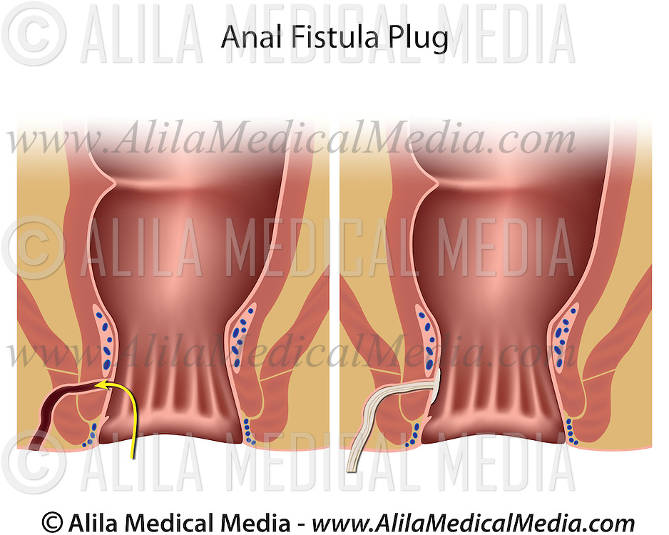 Properties turns medical plug anal muscles