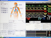 Computer screen regulating the criteria for the simulation and monitoring the patient's status in one of the operation rooms at the ExPERT Centre, a new wing of the University of Portsmouth, on Wednesday, March 28, 2007, in Portsmouth, England. The 'Patient Simulators' can bleed, breathe, drool and even speak, and are being used by students at the state-of-the-art new training centre. They cost 270.000 USD each and are able to simulate all sort of acute conditions, including heart attacks. The 'Patient Simulators' are housed at a $9 million USD centre which opened few weeks ago. Students and professionals from different health-care disciplines simulates conditions to then act and provide the right treatment, while the 'patient' will react accordingly. www.port.ac.uk/expertcentre  **Italy Out**