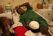 Howard Hospital, Zimbabwe. December 10, 2008. A teenage woman holds here amputated leg. She had her leg mangled by a crocodile while wishing in a nearby lake.