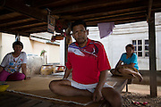 Mr Bunsri Mamak, 50, recovers at his house after spending 13 days in ICU in Ubon's Provincial Hospital after contracting Melioidosis from his fields. He is diabetic and after the symptoms of Melioidosis were wrongly diagnosed at 3 different health clinics and local hospitals he was finally rushed to Sapphasit Prasong hospital that has a Melioidosis clinic and specialised laboratory.<br /> <br /> Melioidosis, though hardly heard of, is Thailand's third largest killer after AIDS and TB. Experts estimate that Melioidosis, caused by a shape-shifting bacteria that lives in water and soil, has 165,000 new cases world-wide a year and that more than half result in death. That means Melioidosis kills roughly the same number as measles or dengue across the globe. <br /> <br /> The bacteria is highly endemic in Northeast Thailand where around 2000 cases are reported per year and mostly from rice farmers who have regular contact with the soil. If not treated and the patients have other complications such a diabetes the mortality rate can be as high as 90% within 5 days.<br /> <br /> If a patient is treated, every case involves a minimum of 2 weeks in hospital followed by 20 weeks of antibiotic treatment and annual followups for the rest of their lives.<br /> <br /> Melioidosis, placed in the same microorganism grouping as anthrax by the US government, is a deadly neglected tropical disease that very few have even heard of.