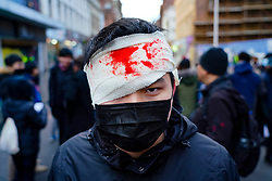 Glasgow, Scotland, UK. 19 January, 2020. Hong Kong students and Amnesty International stage a pro-democracy protest on Sauchiehall Street in Glasgow city centre. The protest was one of several in cities worldwide to protest against the anti-democratic policies of the Chinese Communist Party. Pictured. Protestor with mock bloody wound on head. Iain Masterton/Alamy Live News.